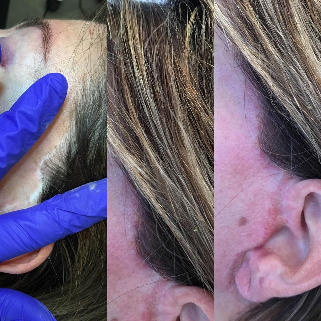 Restorative Cosmetic Process