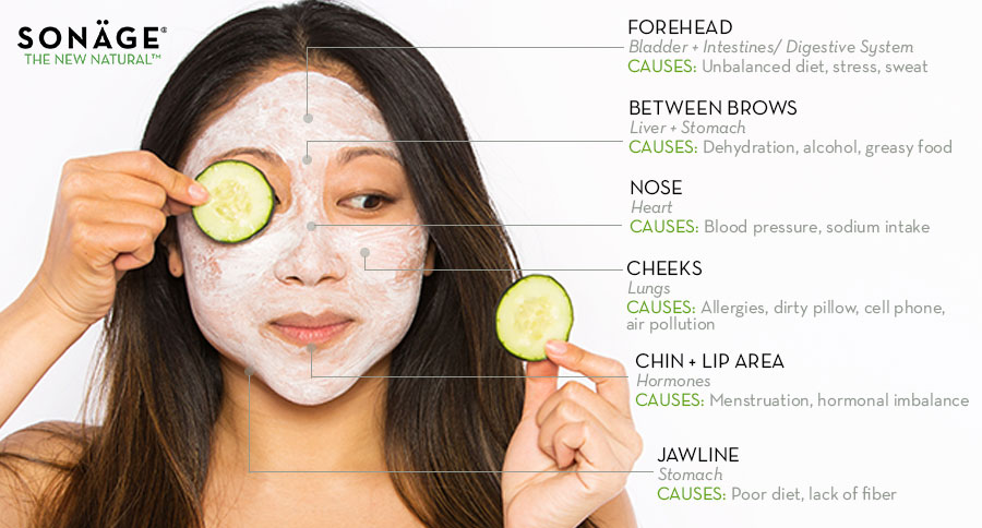 Acne Talk: How Face Mapping Can Help Prevent Breakouts